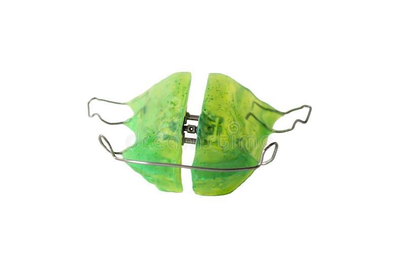 Orthodontic apparatur för två käke royaltyfri bild