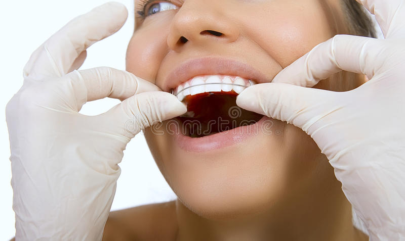Orthodontic doctor examine teeth and gums of jaw, retainer for t stock image