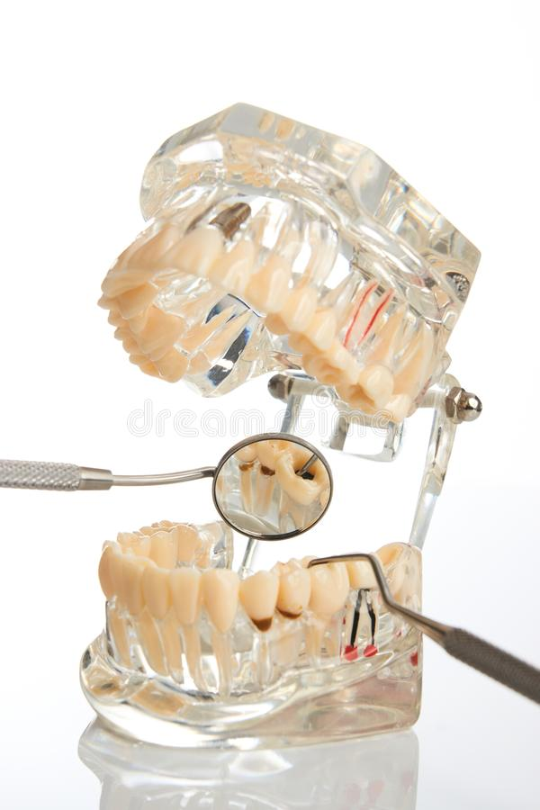 Orthodontic jaw model and dentist tool. Dental mirror isolated on white background, close-up. Student learning teaching model showing teeth, roots, gums, gum stock photo