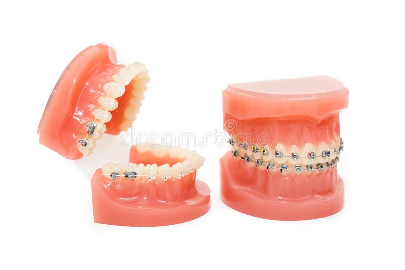 Orthodontic model and dentist tool - demonstration teeth model of varities of orthodontic bracket or brace. Metal and stock photography