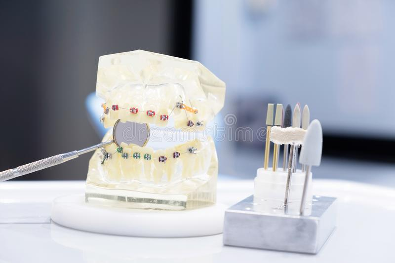 Orthodontic modell arkivbild