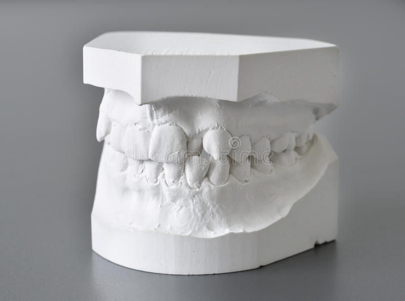 Orthodontic molds dental correction stock photo
