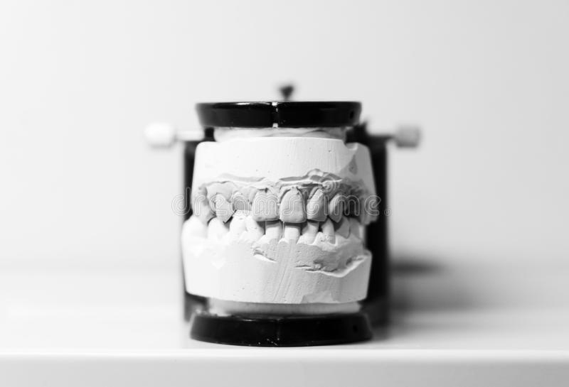 Orthodontic prosthesis. laboratory. close-up. dental black and white. royalty free stock photos