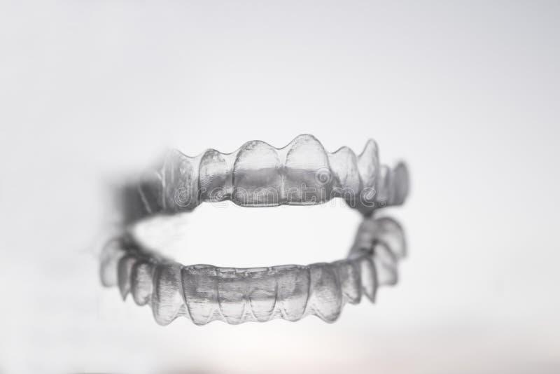 Orthodontics για να διορθώσει την ευθυγράμμιση των δοντιών στοκ φωτογραφία με δικαίωμα ελεύθερης χρήσης