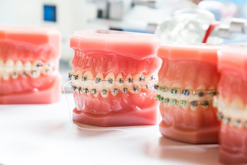 Orthodontics οδοντικά στηρίγματα στο πρότυπο δοντιών για να ευθυγραμμίσει τα δόντια στοκ φωτογραφία με δικαίωμα ελεύθερης χρήσης