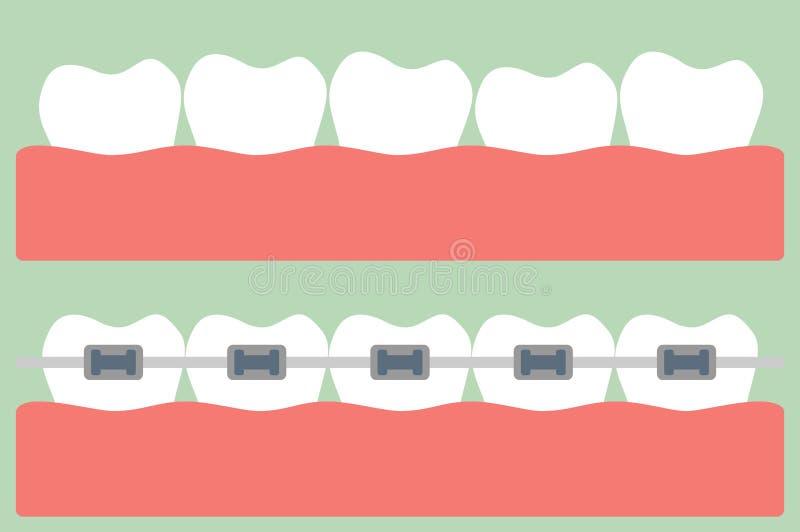 Orthodontics зубов бесплатная иллюстрация