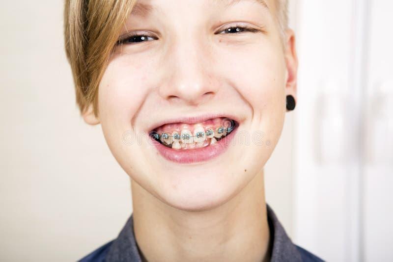 Orthodontics i kąsek korekcja fotografia stock