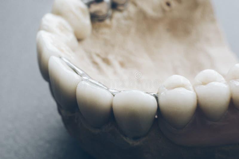 Orthodontics protetyk stomatologiczni wszczepy gipsowi obraz stock