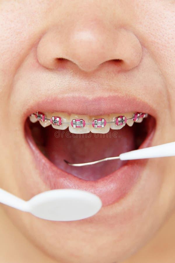 Orthodontics, stomatologiczny pojęcie zdjęcia stock