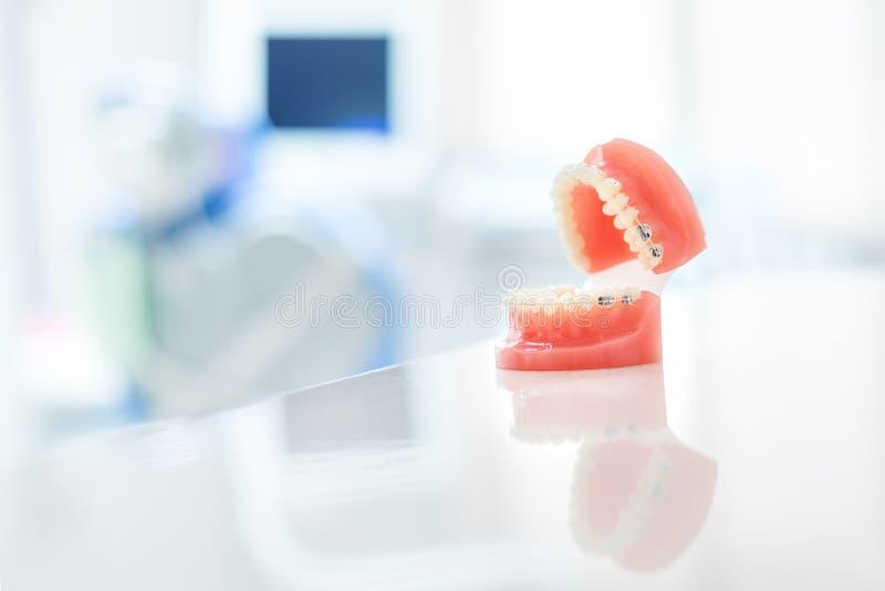 Orthodontisch model en tandartshulpmiddel - de demonstratietanden modelleren met ceramische steunen op tanden op kunstmatige kake royalty-vrije stock foto's