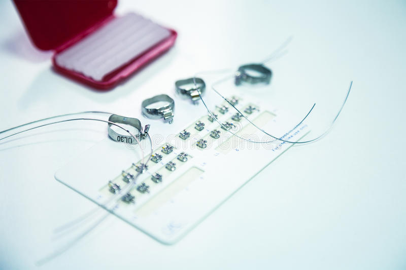 Orthodontische Klammern lizenzfreie stockfotografie