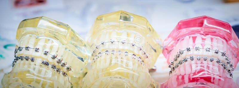 Orthodontische steunen op model stock foto's