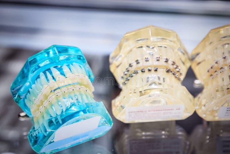 Orthodontische steunen op model stock foto
