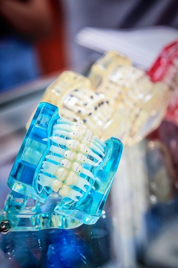 Orthodontische steunen op model royalty-vrije stock afbeelding