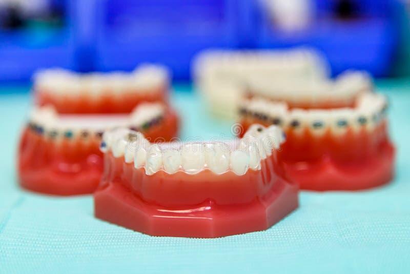 Orthodontische Unsichtbare Und Drahtklammern Stockfoto - Bild von ...