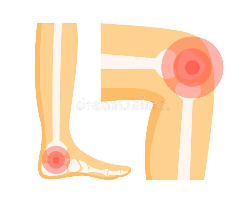 Orthopädische Probleme in der Fuß-Vektor-Illustration lizenzfreie abbildung