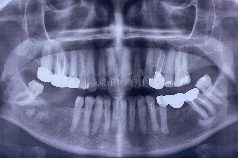Orthopantomography of an adult patient , panoramic x-ray. dental. Crown. stomatology stock photo