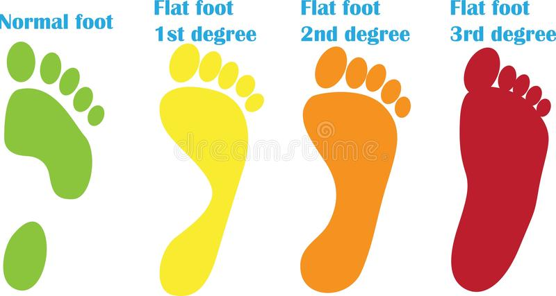 Orthopedic steps of flat foot stock illustration