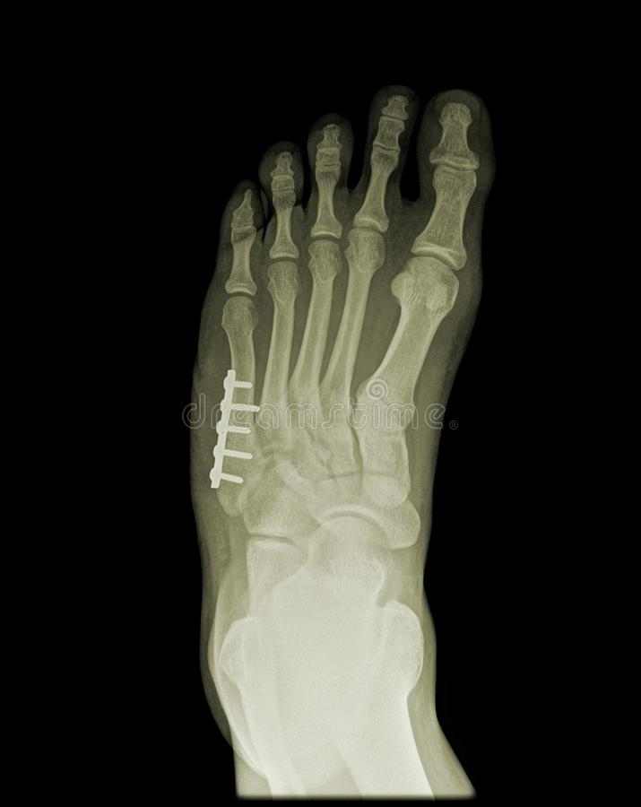 Orthopedic surgery of human foot on x-ray royalty free stock images