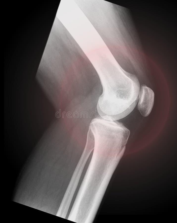 Orthopedics nei pazienti di dolore del ginocchio fotografie stock