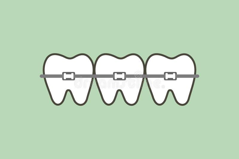 Ortodontyczni zęby lub stomatologiczni brasy ilustracja wektor