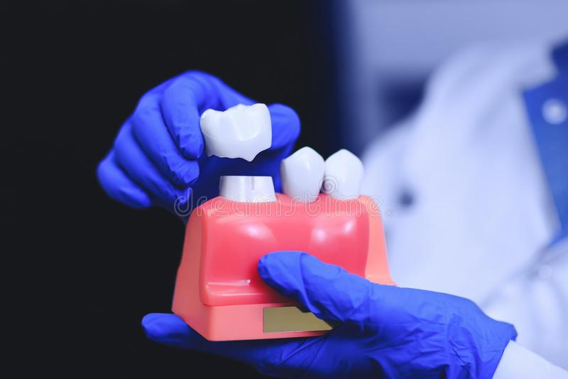Ortodontyczny traktowanie z stomatologicznymi wszczepami stomatologiczny wszczepów medycyny stomatology fotografia royalty free