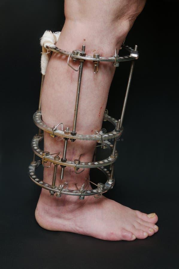 Ortopedia immagini stock
