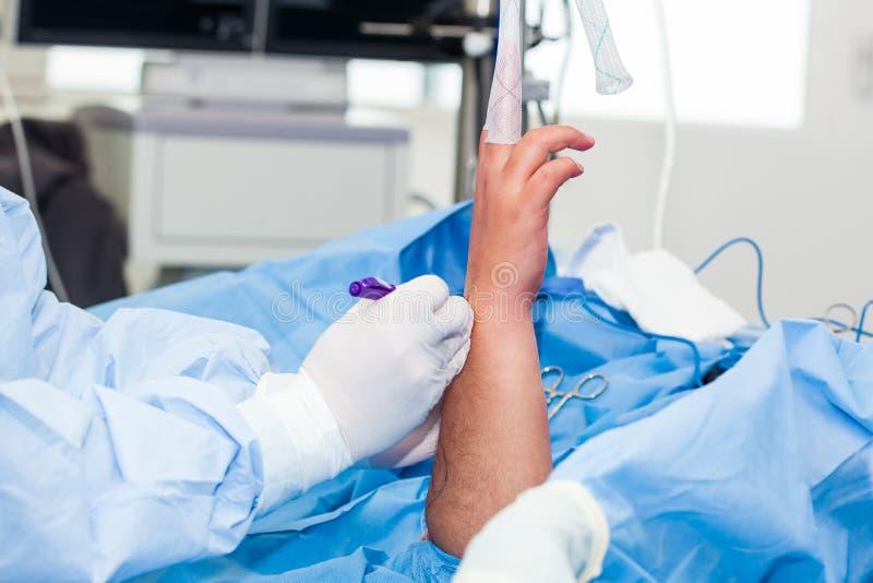 Ortopedyczny chirurg zaznacza chirurgicznie miejsce tuż przed wykonywać nadgarstku arthroscopy zdjęcie stock