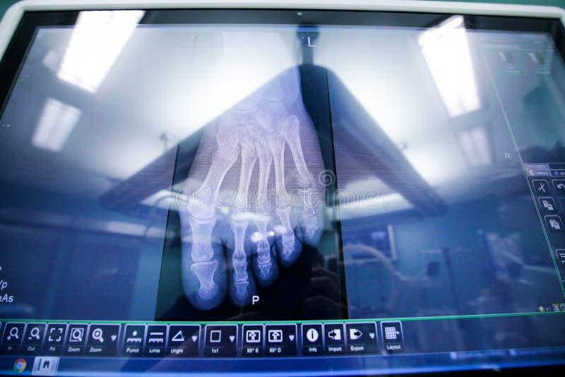 Ortopedyczny prześwietlenie fotografia stock