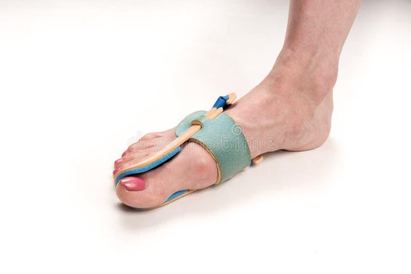 Ortose de estabilização para a correção do dedo grande do pé no pé da mulher quando valgus do hallux, 1 pé, close-up isolado, bra fotos de stock