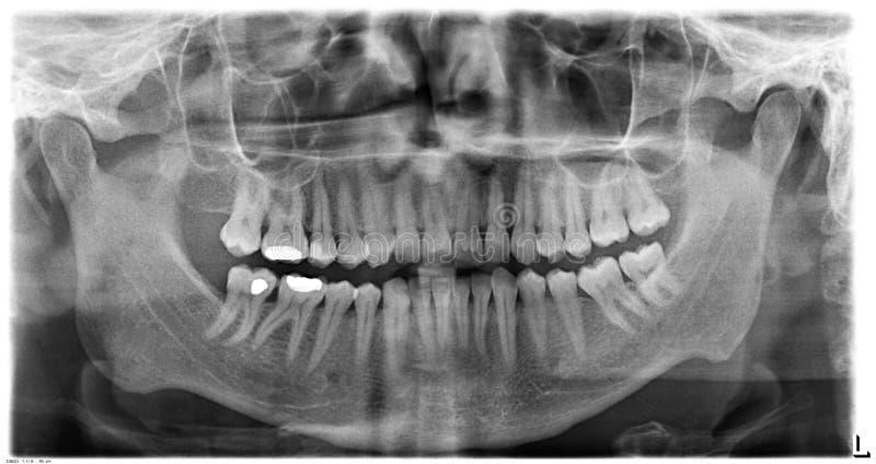 Oryginalna czarna biała promieniowanie rentgenowskie zębów obrazu cyfrowego żuchwa zdjęcie stock