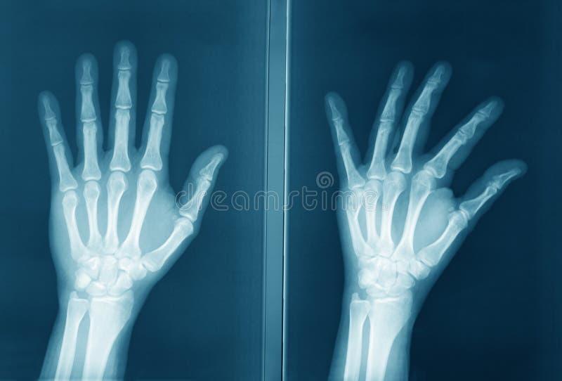 Oryginalny prześwietlenie ludzka ręka zdjęcia stock