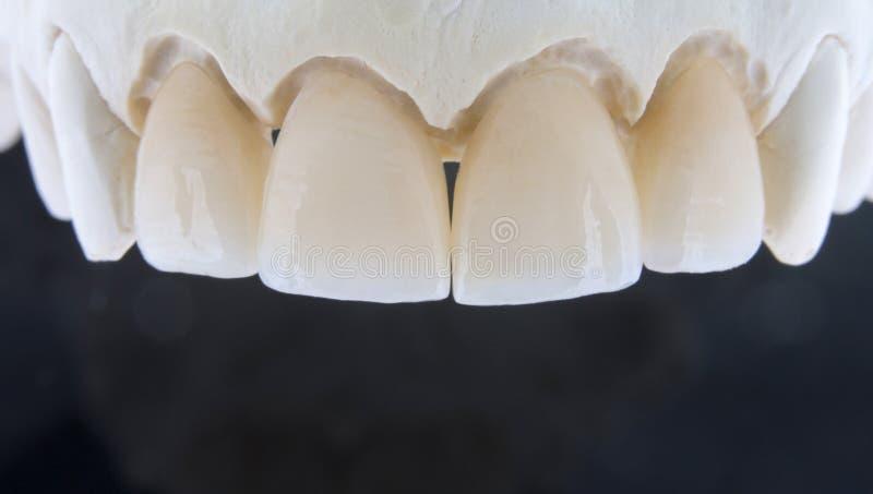 Os dentes cerâmicos em um emplastro modelam com um fundo preto fotos de stock royalty free
