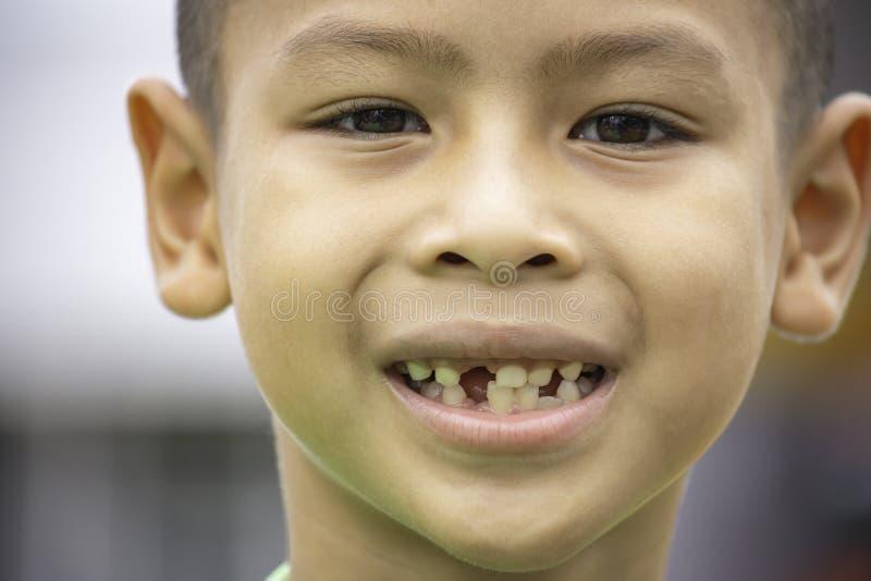 Os dentes de beb? s?o deixados cair apenas na boca fotos de stock royalty free
