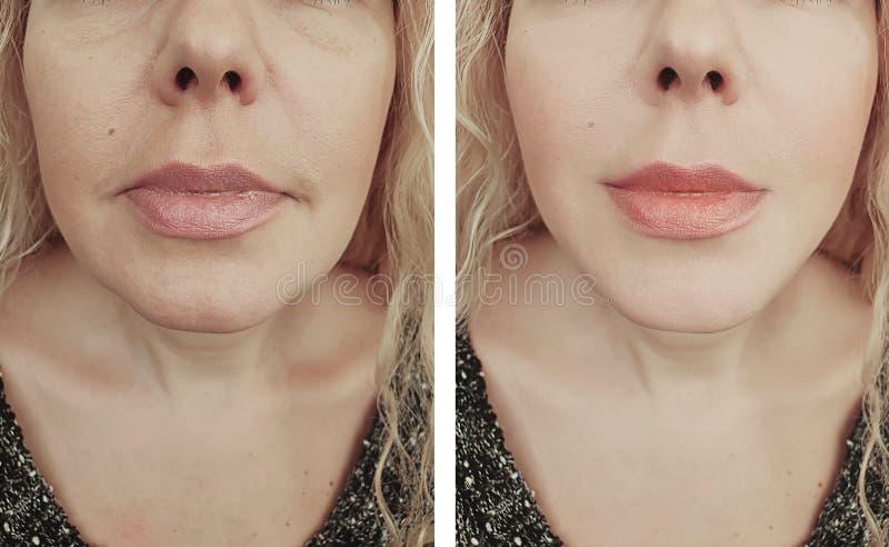 Os enrugamentos da mulher enfrentam antes após o problema dos tratamentos da regeneração dos resultados da diferença fotos de stock