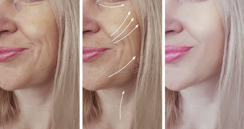 Os enrugamentos da mulher enfrentam antes e depois da colagem do tratamento fotos de stock