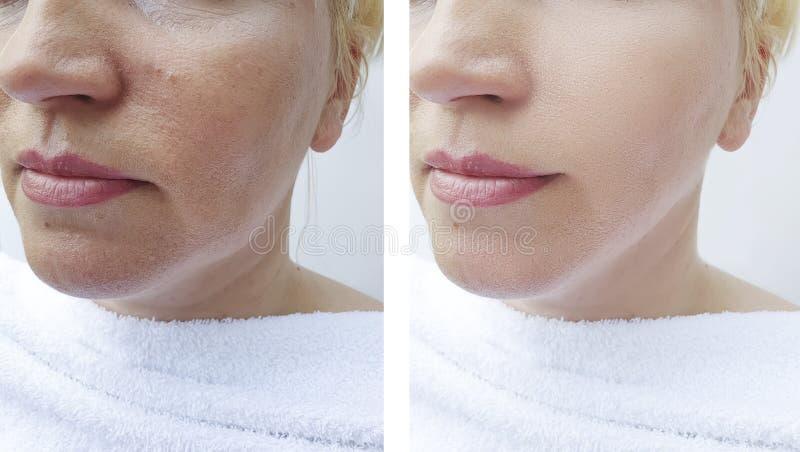 Os enrugamentos da mulher enfrentam antes e depois dos procedimentos da correção da diferença do tratamento, ovais imagem de stock