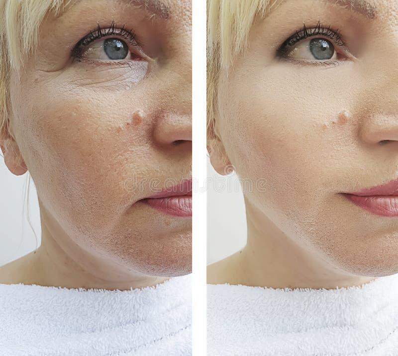 Os enrugamentos da mulher enfrentam antes e depois dos procedimentos da correção da diferença do tratamento da remoção, ovais imagem de stock