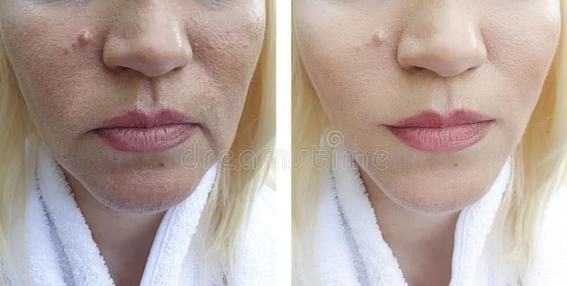 Os enrugamentos da mulher enfrentam antes e depois dos procedimentos da correção da diferença, ovais imagem de stock