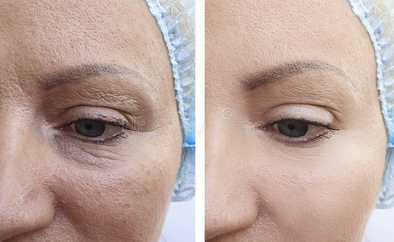 Os enrugamentos da mulher enfrentam antes e depois dos sacos da remoção, procedimentos da correção da diferença do tratamento da  imagens de stock