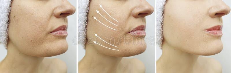 Os enrugamentos da mulher enfrentam antes e depois da seta da colagem da correção da terapia da diferença da correção imagens de stock
