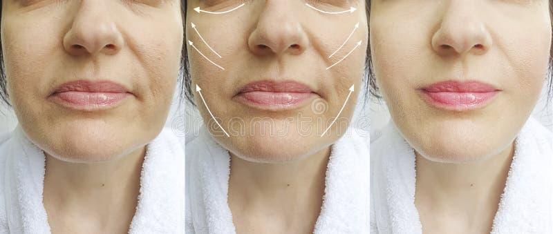 Os enrugamentos da mulher enfrentam antes e depois da seta da colagem da correção da terapia da diferença imagens de stock royalty free