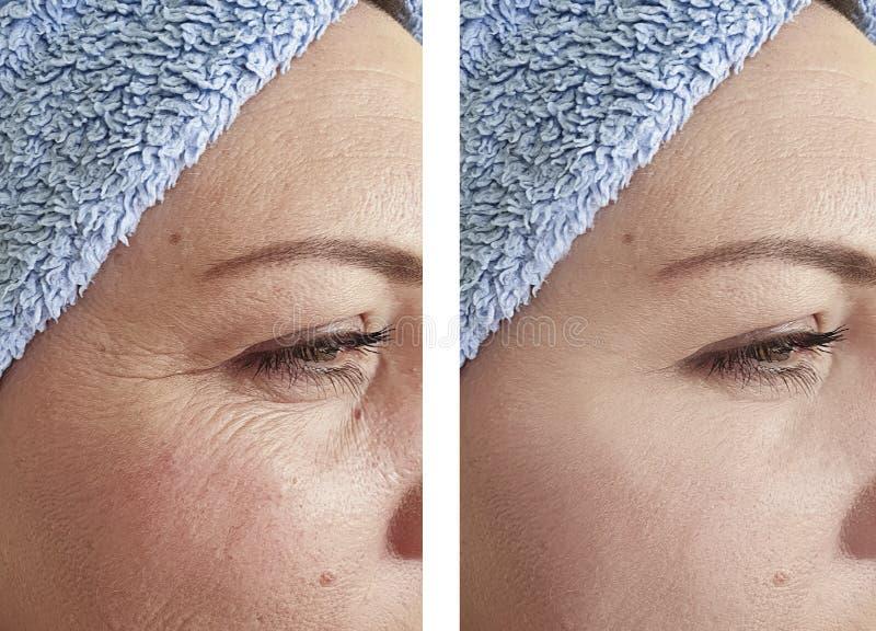Os enrugamentos da mulher enfrentam a terapia da diferença antes após tratamentos foto de stock