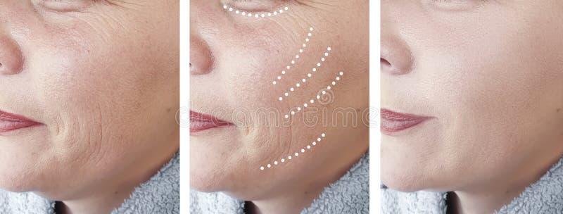 Os enrugamentos fêmeas amadurecem tratamentos da terapia da regeneração da correção da cosmetologia do efeito da diferença da col imagem de stock royalty free