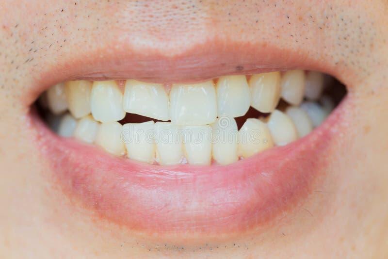 Os ferimentos dos dentes ou dentes que quebram no homem Traumatismo e dano do nervo do dente ferido imagem de stock