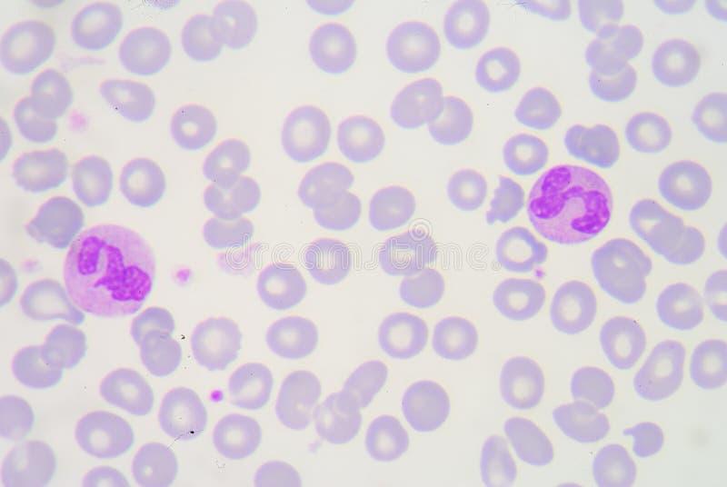 Os neutrófilo são um tipo de fagócito e são encontrados normalmente no th fotos de stock royalty free