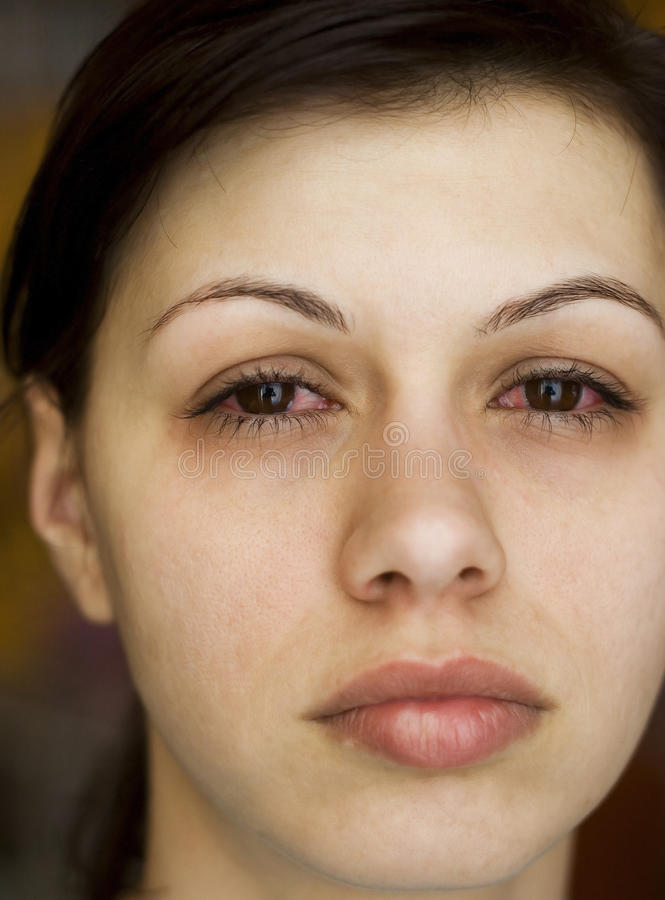Os olhos da mulher doente imagens de stock royalty free