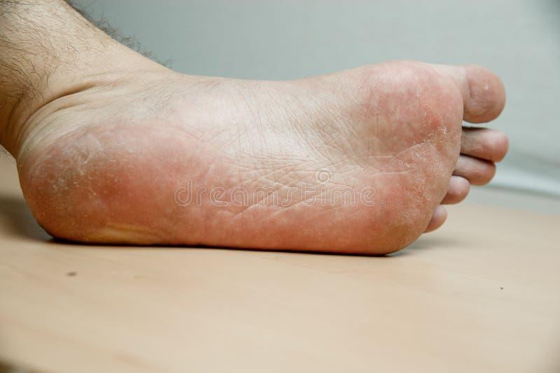 Os pés dos homens com pele rachada, despenteado após a paralisia das extremidades mais baixas imagem de stock