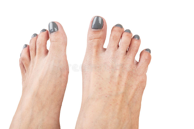 Os pés fêmeas com eczema contaminam, isolado no fundo branco, cl fotografia de stock royalty free