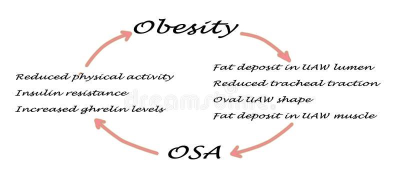 OSA ed obesità illustrazione vettoriale